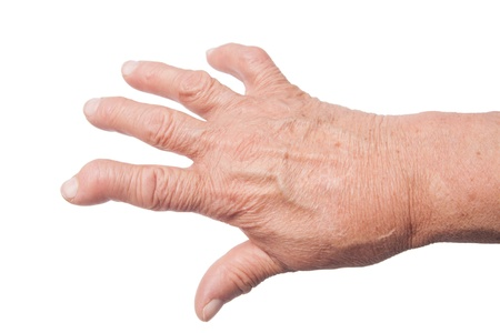 hand of old woman deformed from rheumatoid arthritis